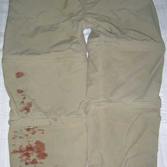 My bloody trousers after a leach bite
