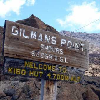 Gilman's sign
