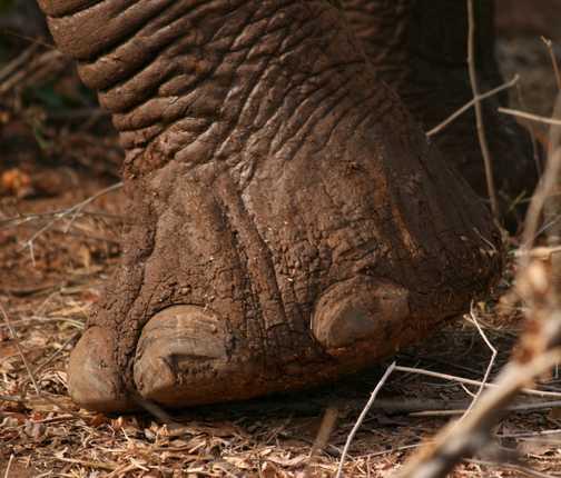 His toenails look just like mine!